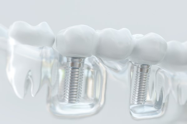 An Implant Dentist Discusses   Cosmetic Benefits Of Replacing Missing Teeth